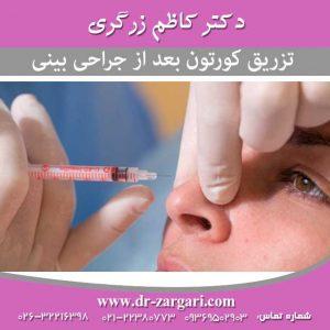 تزریق کورتون بعد از جراحی بینی