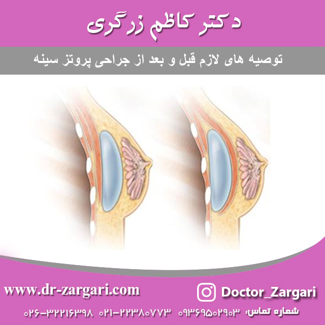 توصیه های لازم قبل و بعد از جراحی پروتز سینه