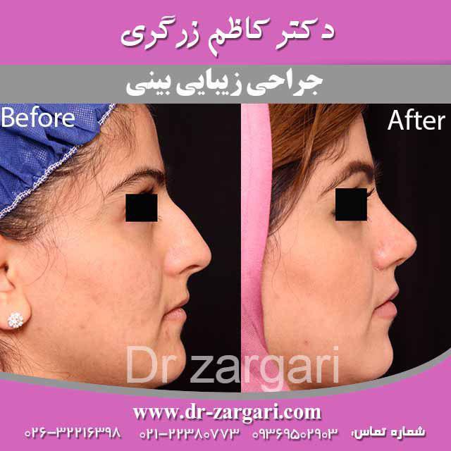 جراحی بینی خانم