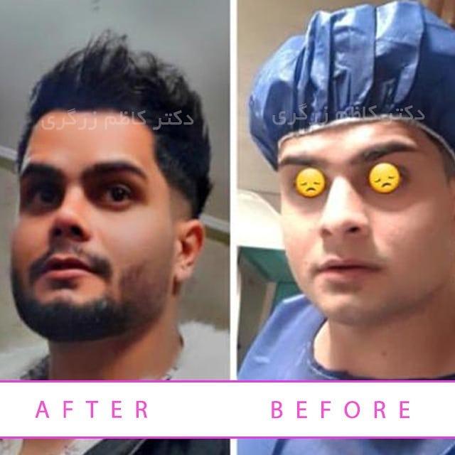 جراحی بینی مردانه در تهران
