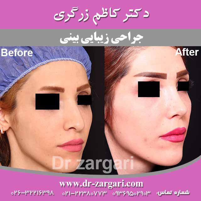 جراحی زیبایی بینی خانم