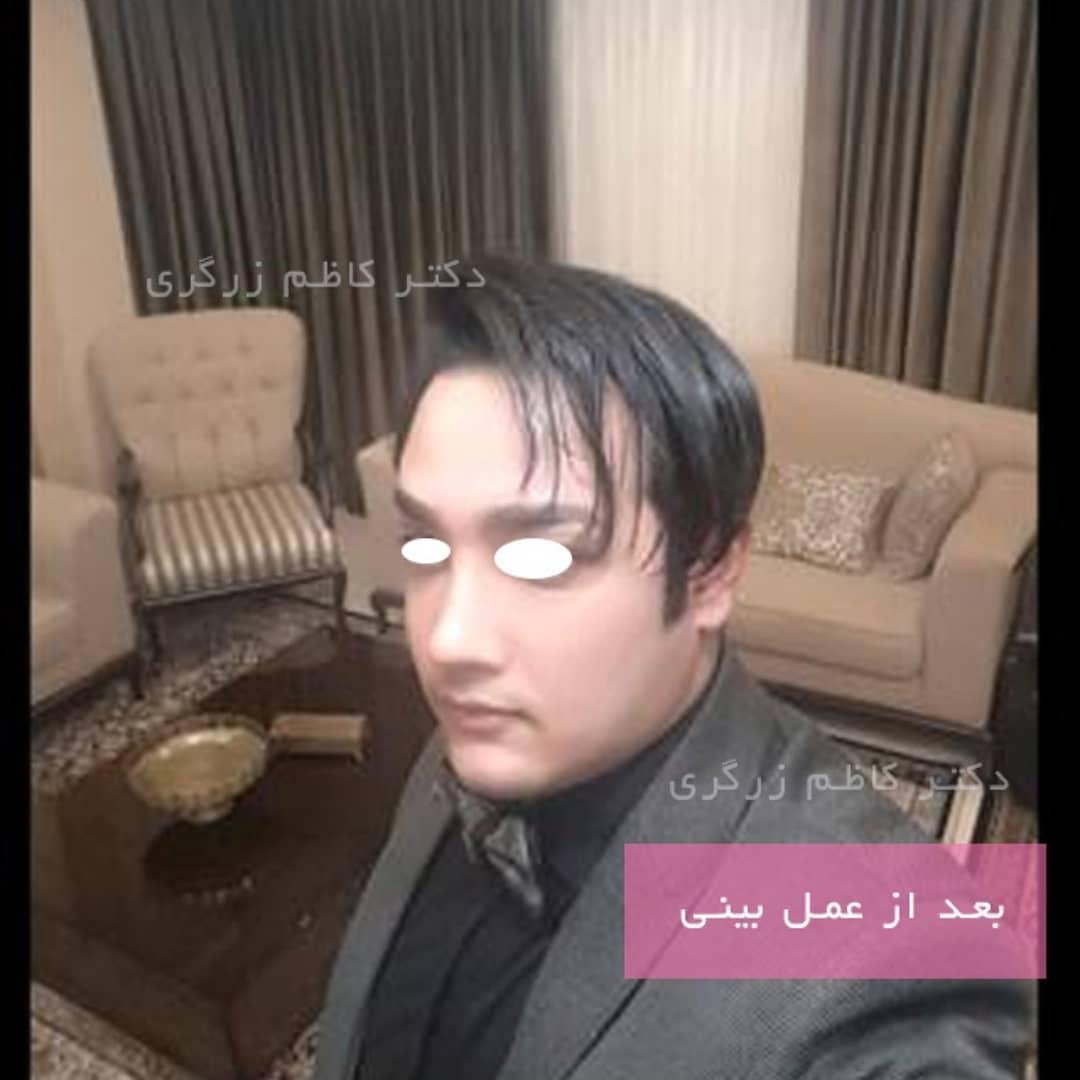 عمل بینی مردانه
