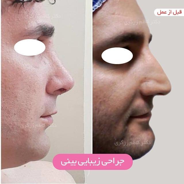 عمل زیبایی بینی در مردان