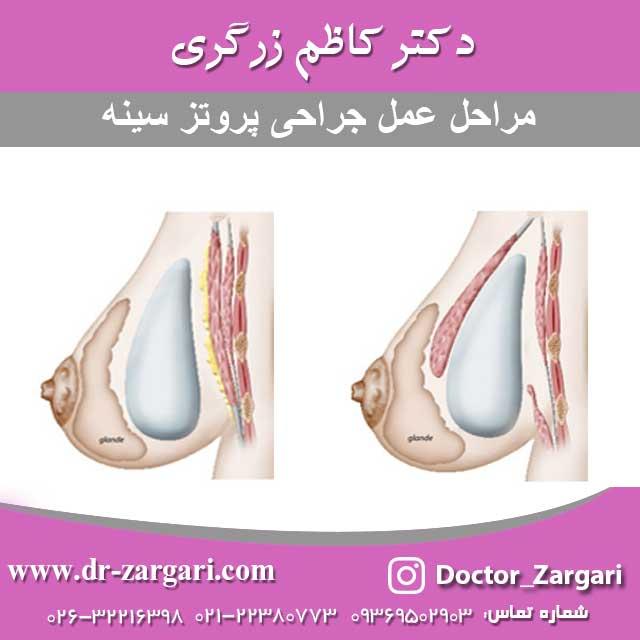 مراحل عمل جراحی پروتز سینه