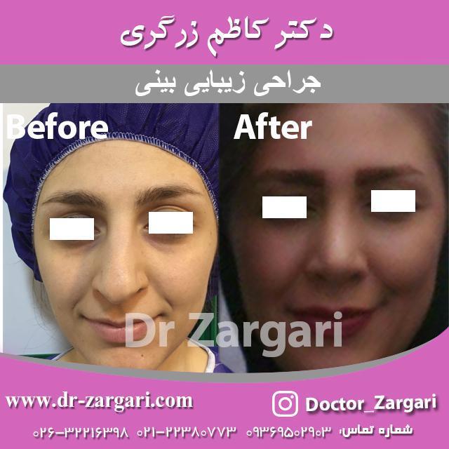 سوالات متداول جراحی بینی استخوانی