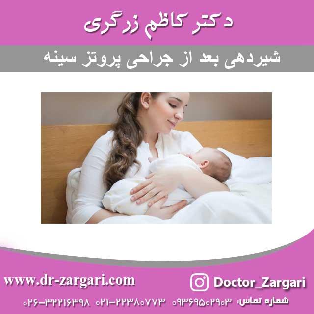 شیردهی بعد از جراحی پروتز سینه