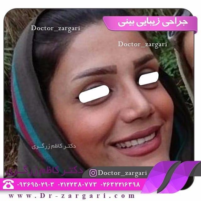 ویژگی بینی های استخوانی