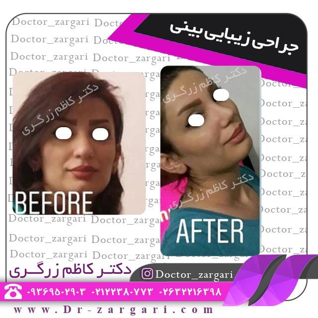 تفاوت جراحی بینی به روش باز و روش بسته