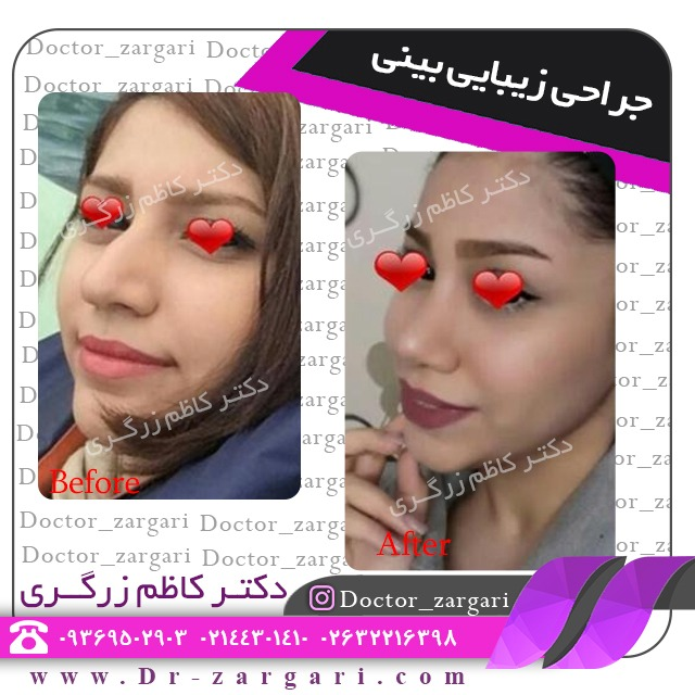 جراحی بینی ثانویه